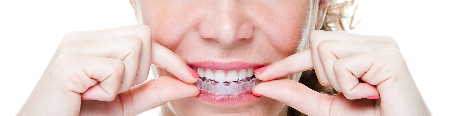 orthodontic services odyssey dental winnipeg dentist